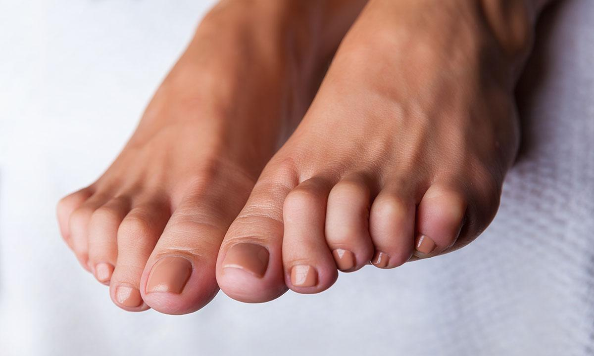nedsunken forfod symptomer