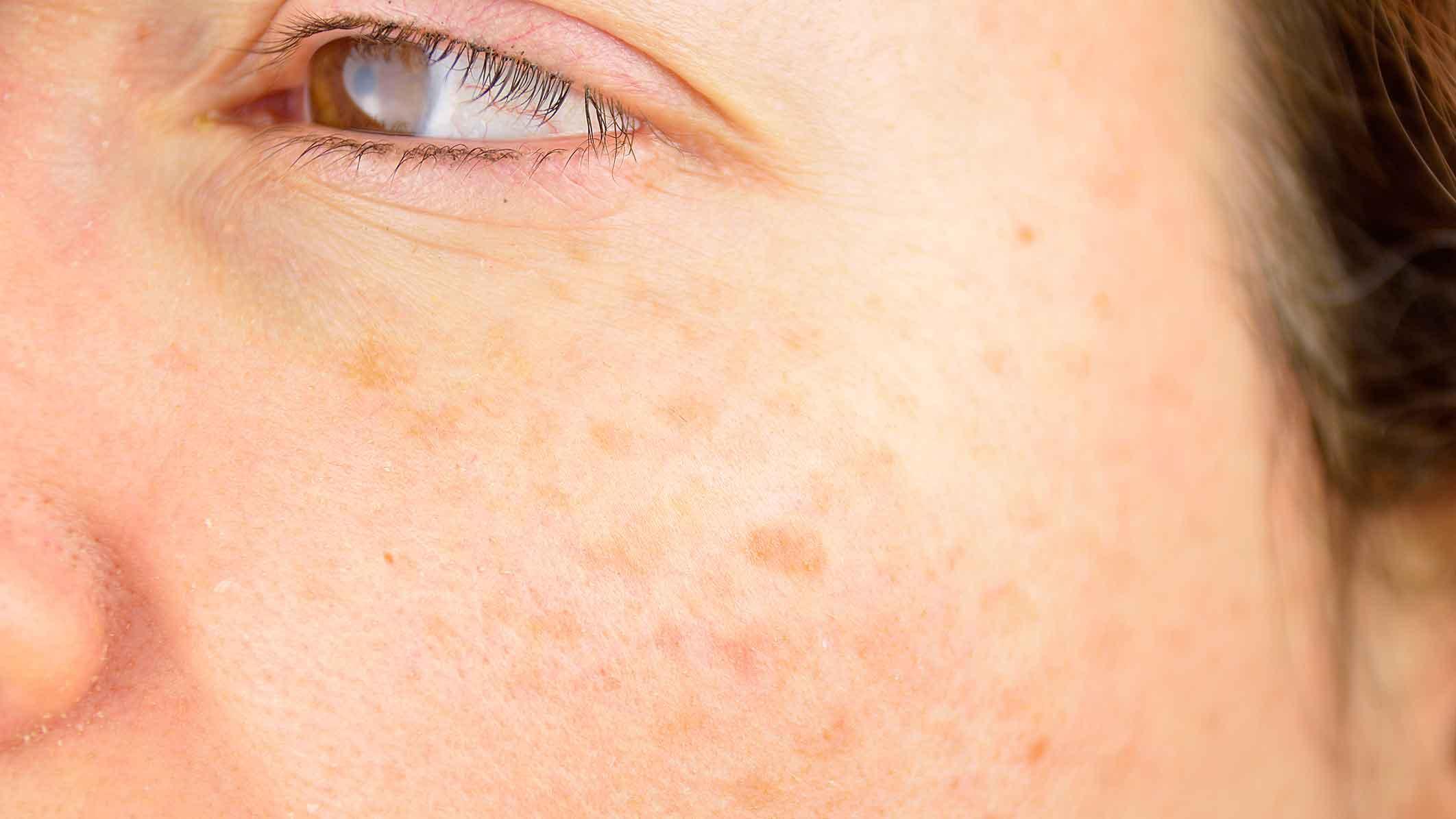 Symptomer hudkræft