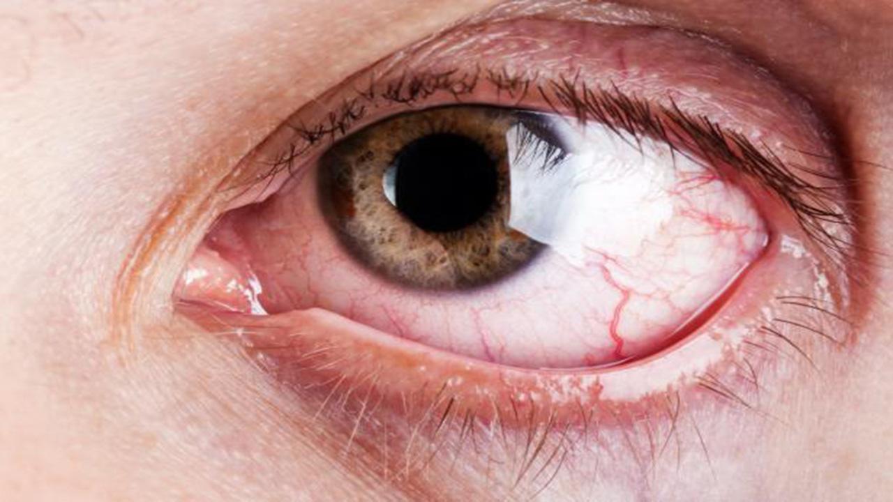 hvidt slim i øjet
