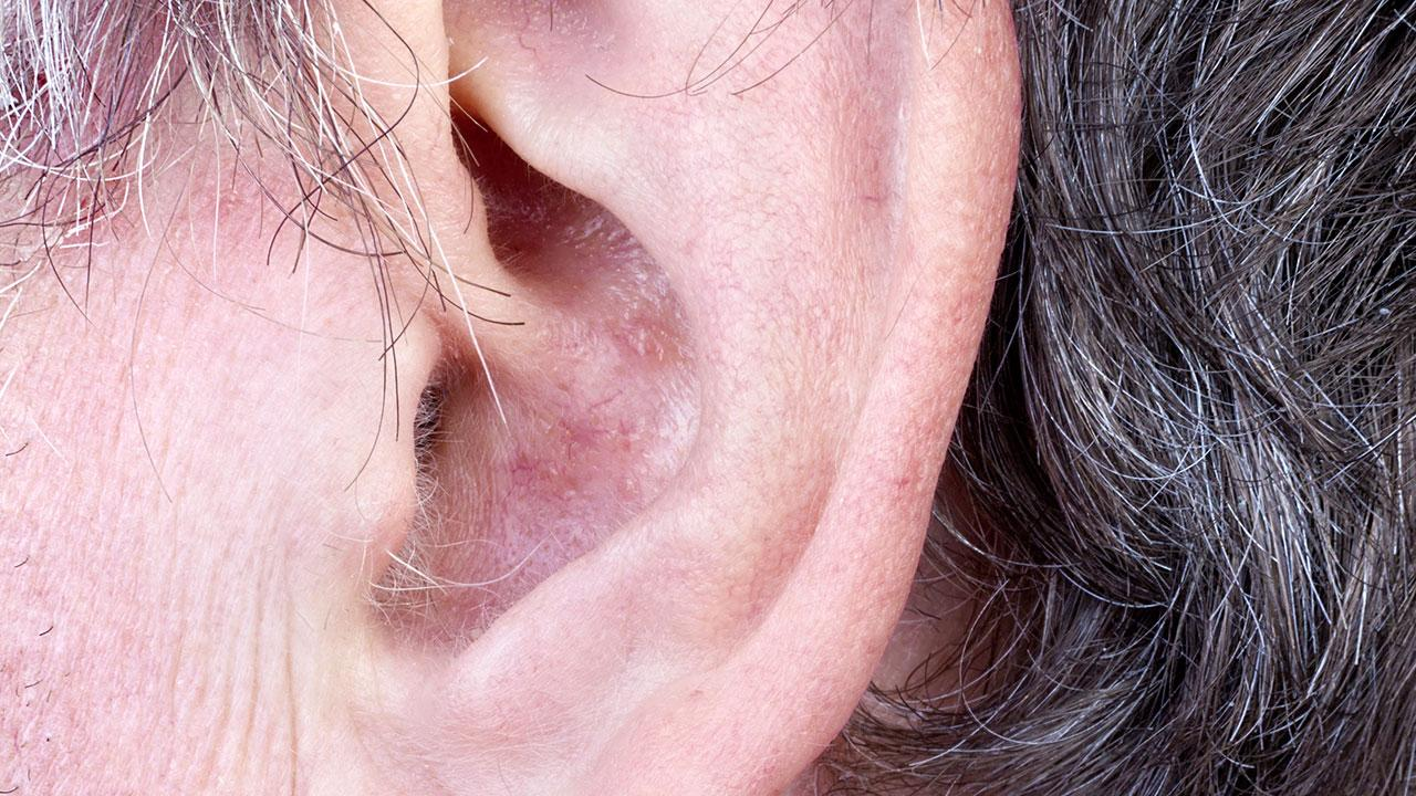 hår på ørene